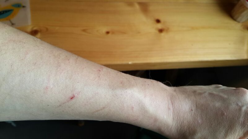 Bite marks left by play biting